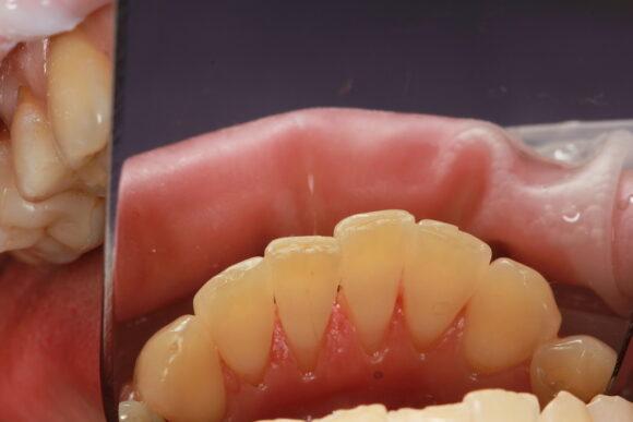 Фото после чистки зубов в стоматологии NKclinic