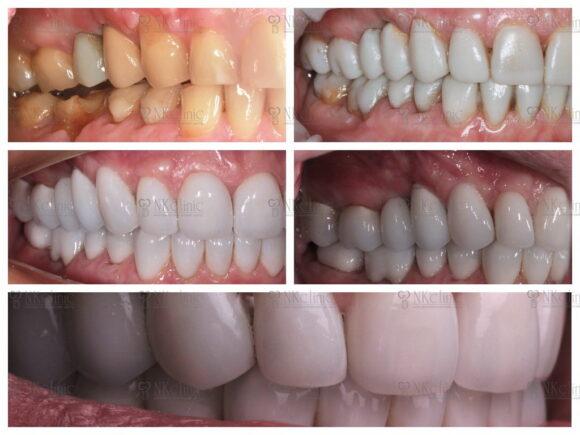 Пример работы специалистов NKclinic - фото до и после установки виниров