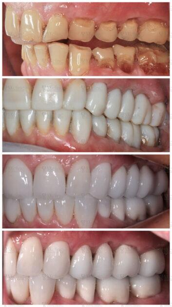 Фото до и после установки зубных виниров: NKclinic