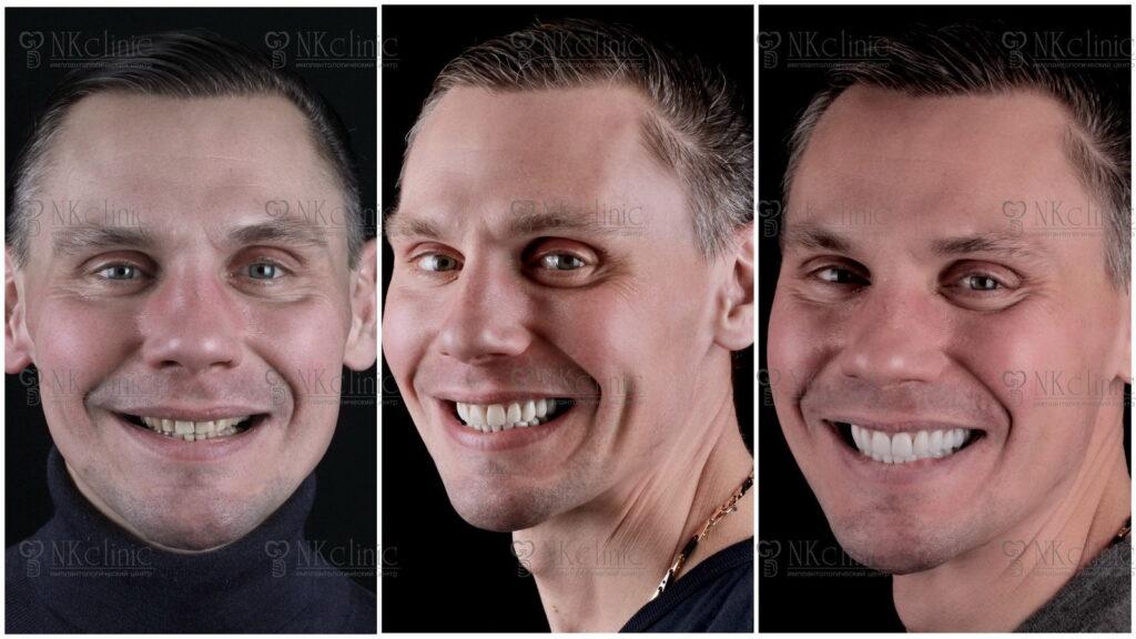 Пациент NKclinic после установленных зубных виниров