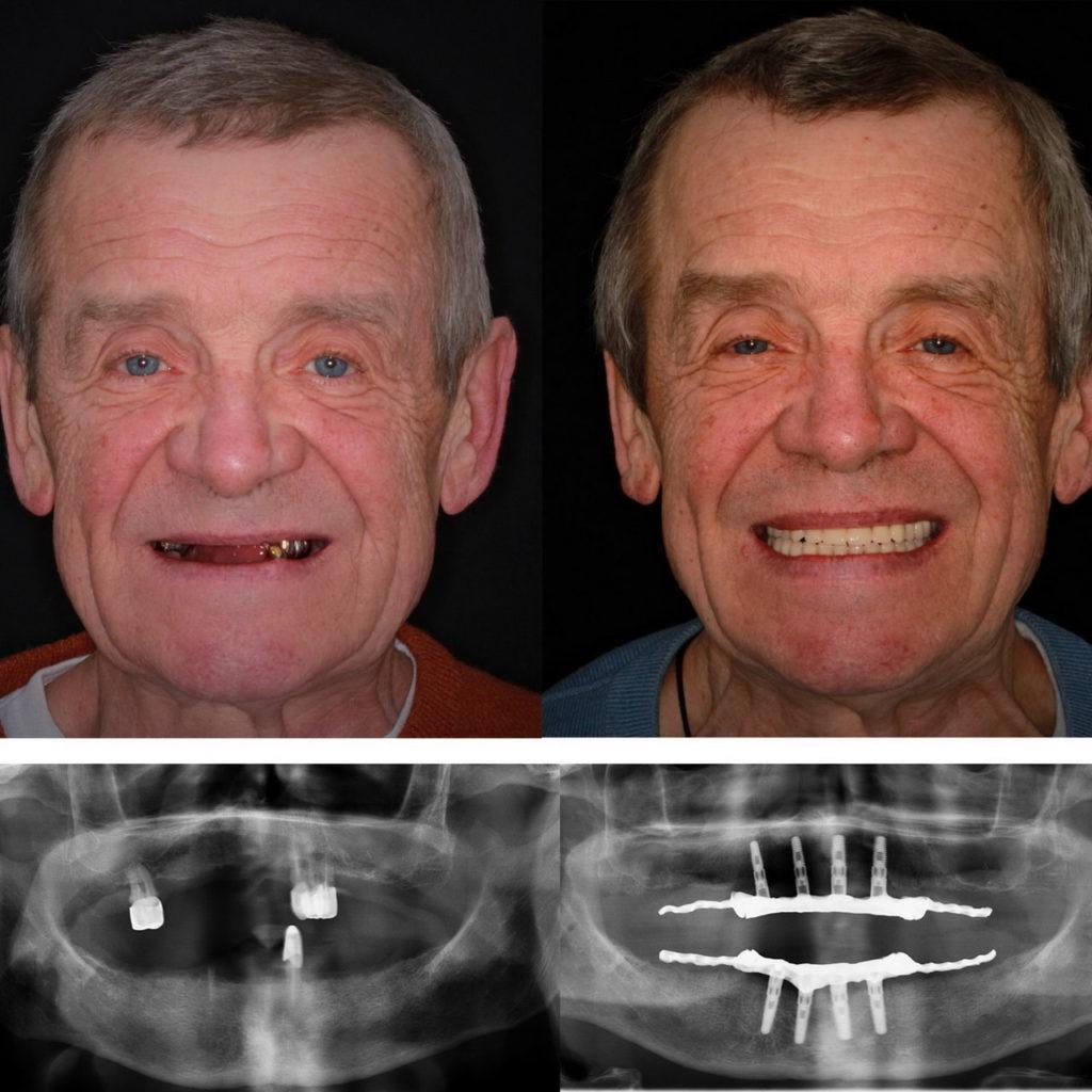 Фото с рентгеновским снимком пациента до и после имплантации зубов системой Nobel.