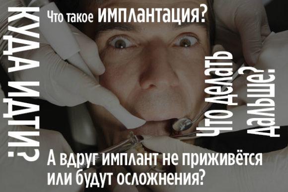 Страхи перед имплантацией зубов